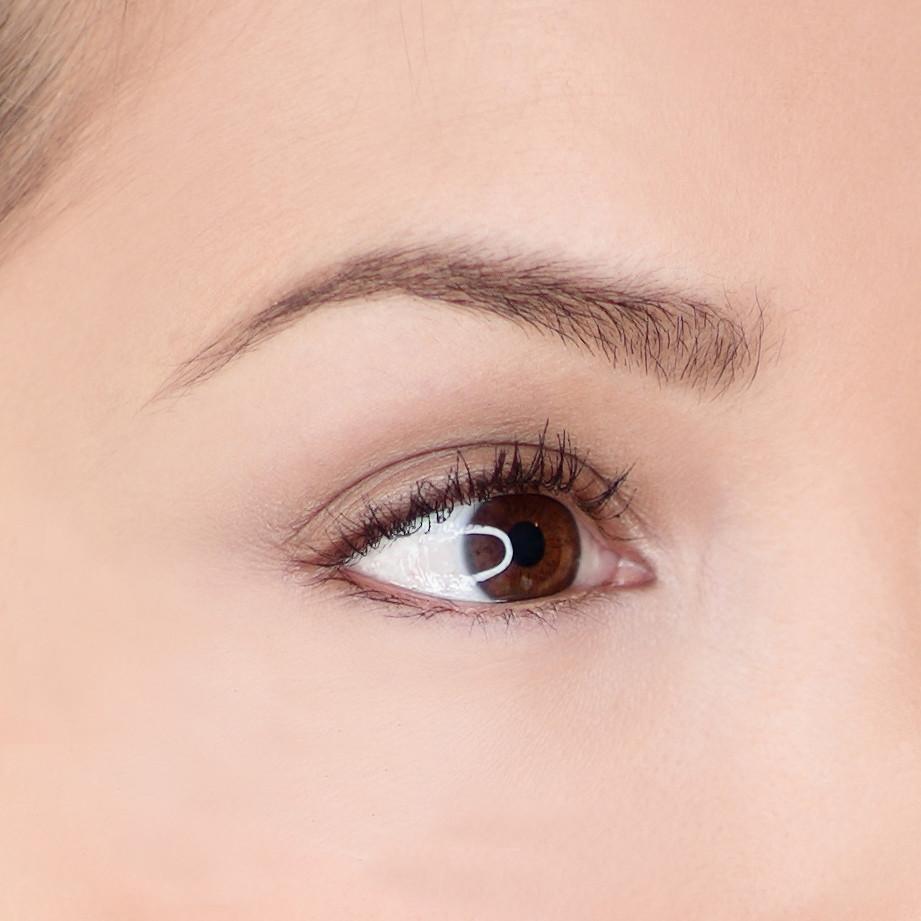 Augenbrauenlift