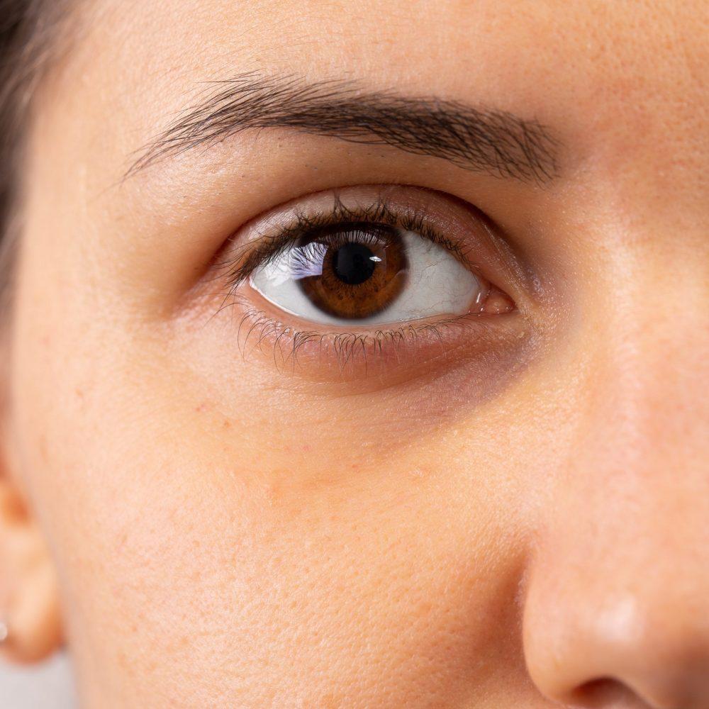 Unterspritzung der Augenringe