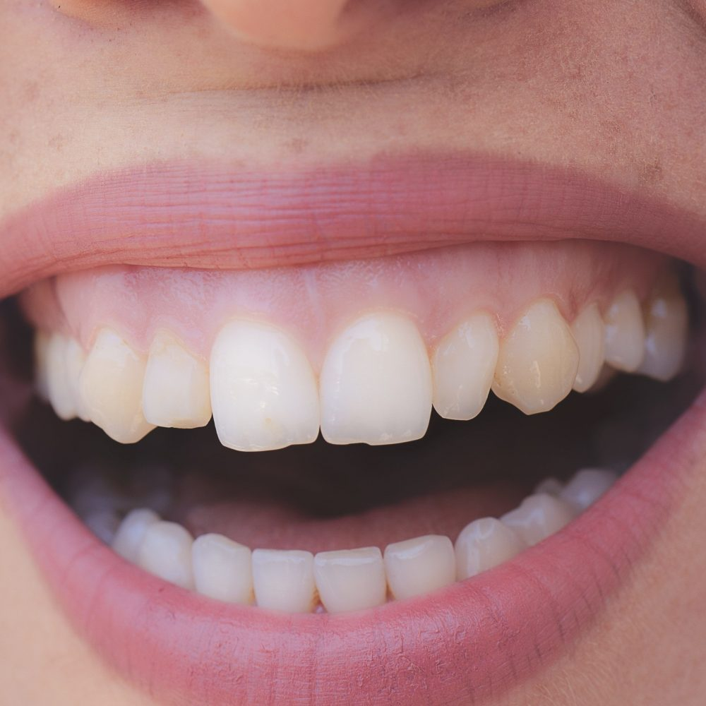 Zahnfleischlächeln behandeln